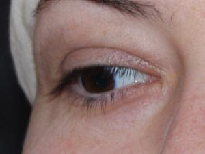 Bild eines rechten Auges